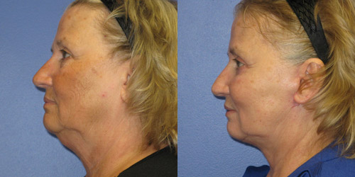 neck lift before after pic